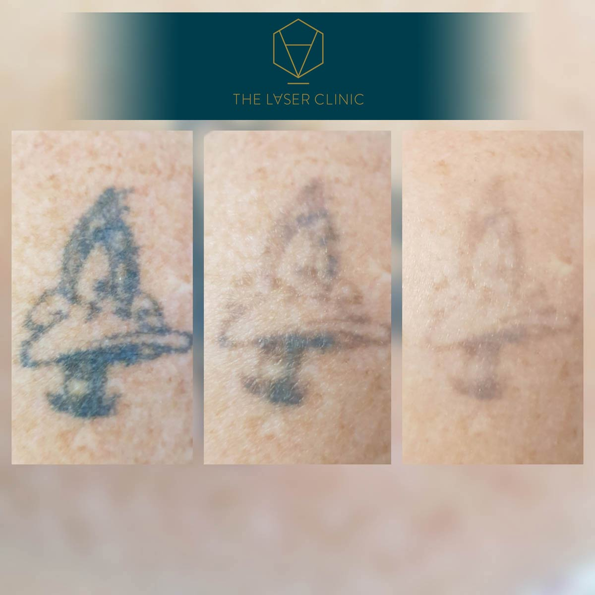 Tattoo Removal 2 - The Laser Clinic Exmouth
