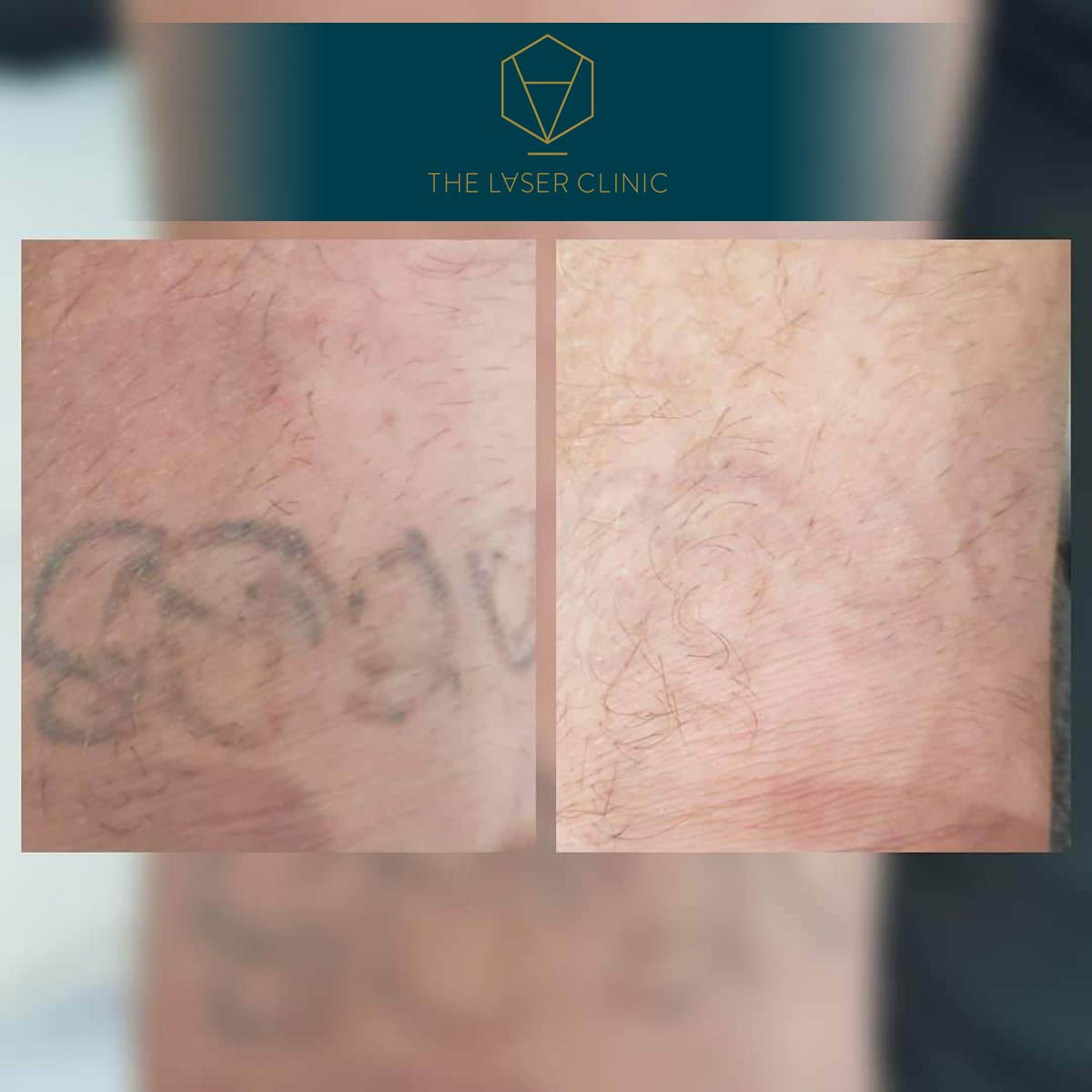 Tattoo Removal 3 - The Laser Clinic Exmouth