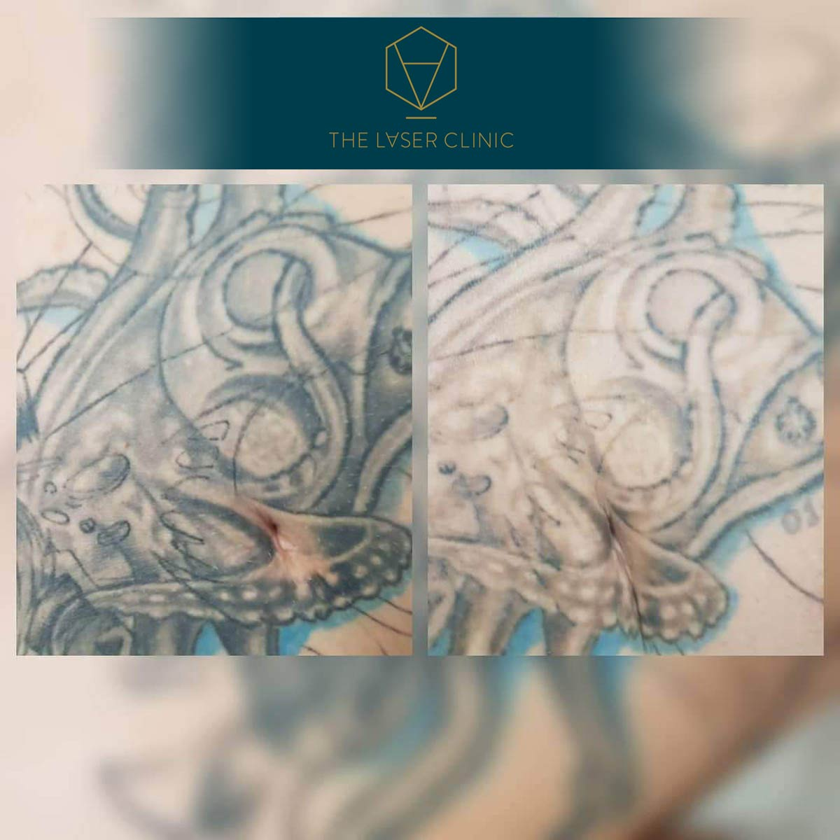 Tattoo Removal - The Laser Clinic Exmouth
