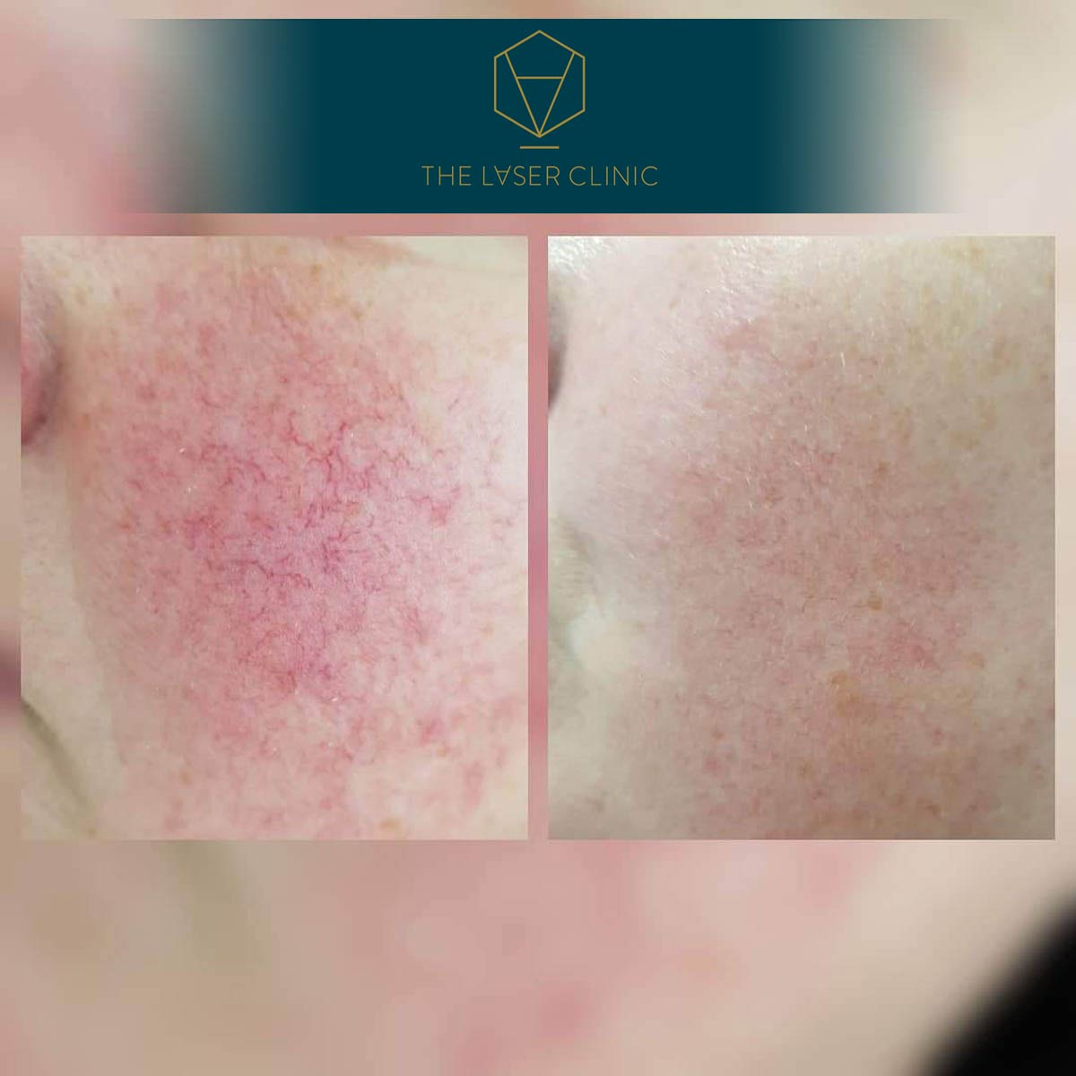 Thread Vein - The Laser Clinic Exmouth
