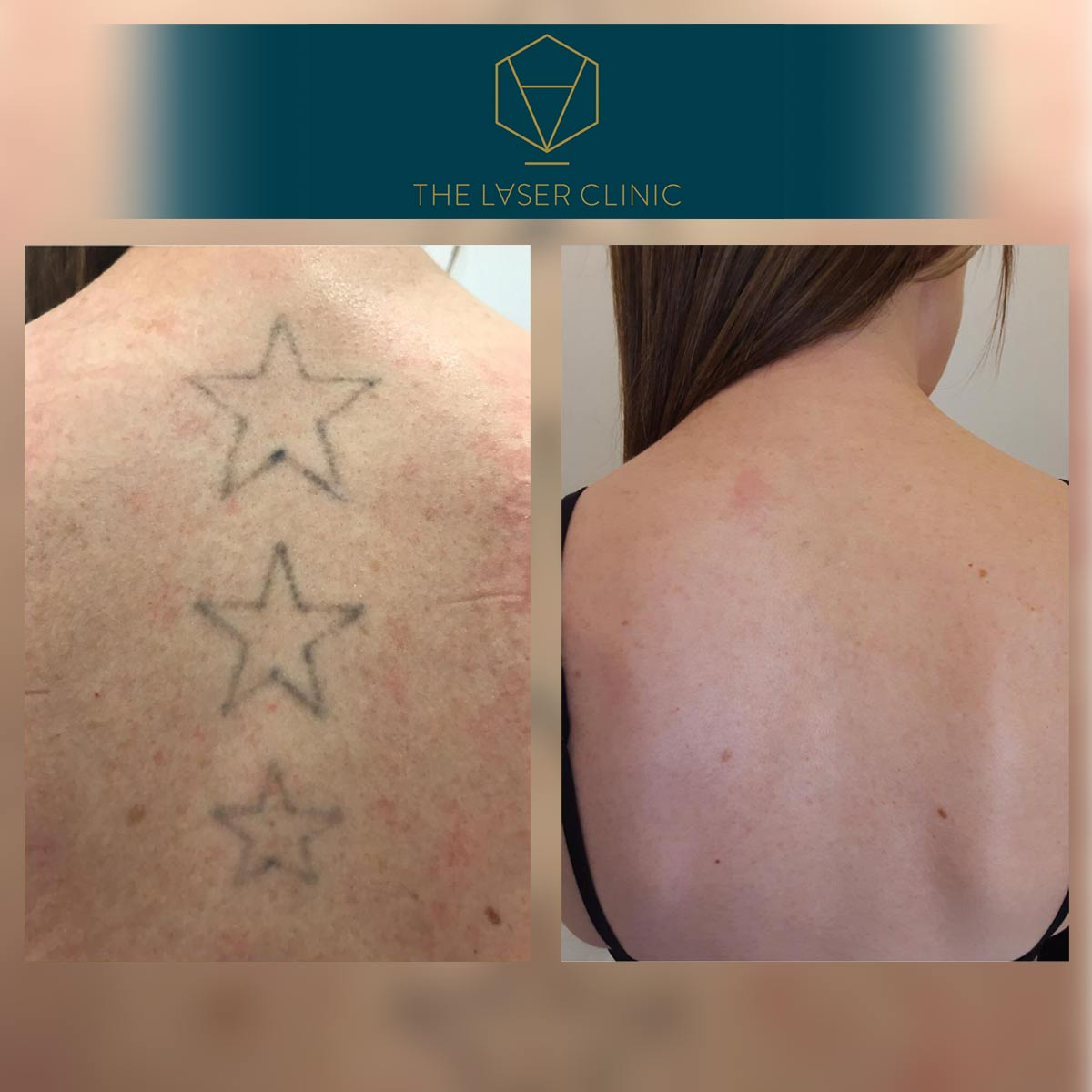 Tattoo Removal 5 - The Laser Clinic Exmouth